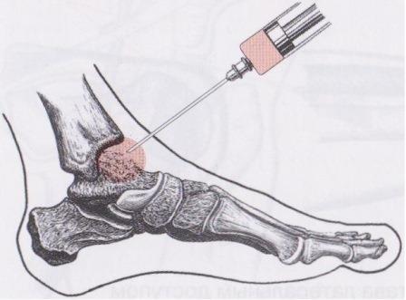 изображение голеностопного сустава