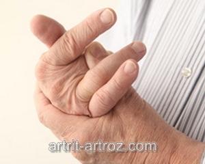 человек сгибает палец на руке