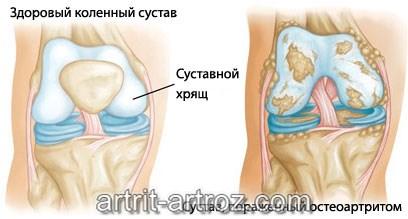схема заболевания артрит коленного сустава