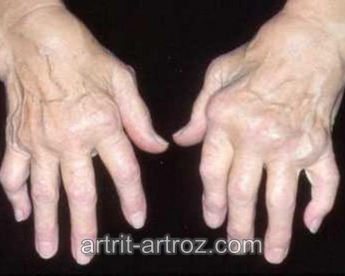 кисти рук с воспаленными суставами