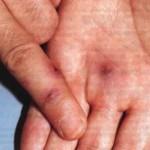 Инфекционный артрит: описание болезни у детей и взрослых