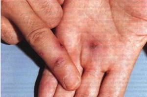 фото с больными суставами пальцев