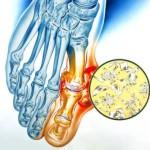 Подагрический артрит: проводим лечение проверенными методами