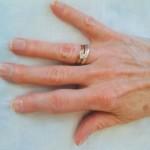 Псориатический артрит: симптомы и способы лечения заболевания