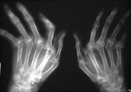 снимок больных кистей рук