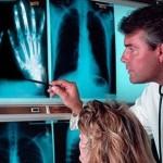 Как лечить артрит: эффективные методы терапии и профилактика болезни