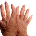 Полиартроз: характерные симптомы и методы лечения