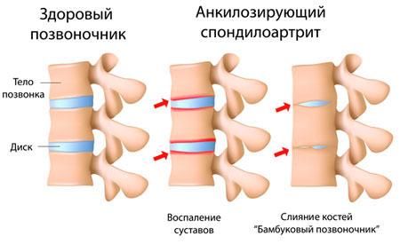 инстраграма заболевания позвоночника