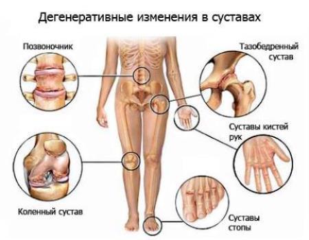 рисунок дегенеративных изменений в суставах