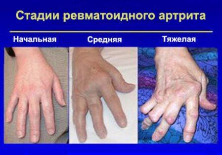 стадии поражения суставов