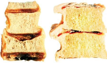 поражение кости остеопорозом