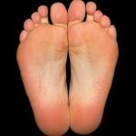 Плоскостопие – виды и лечение заболевания стопы