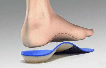 ортопедическая стелька