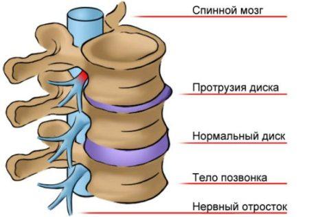 повреждение диска