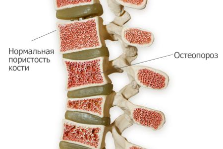 вид кости при остеопорозе