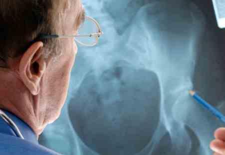 врач смотрит на снимок сустава