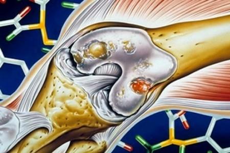 коленный артроз