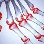 Реактивный артрит: лечение заболевания у детей и взрослых
