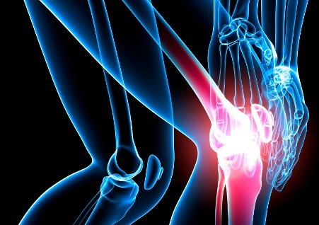 артроз суставов колена