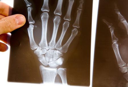 рентгеновский снимок кисти