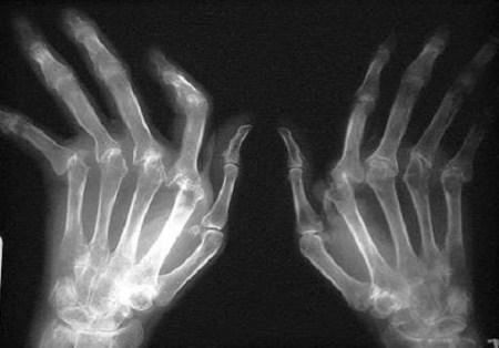 ревматоидный артрит кистей