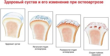 сустав при остеоартрозе