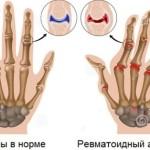 Ревматоидный артрит: диагностика и анализы