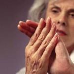 Ревматоидный артрит: фото внешних признаков и симптомов