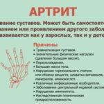Самое важное об артрите