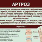Инфографика с фактами о артрозе