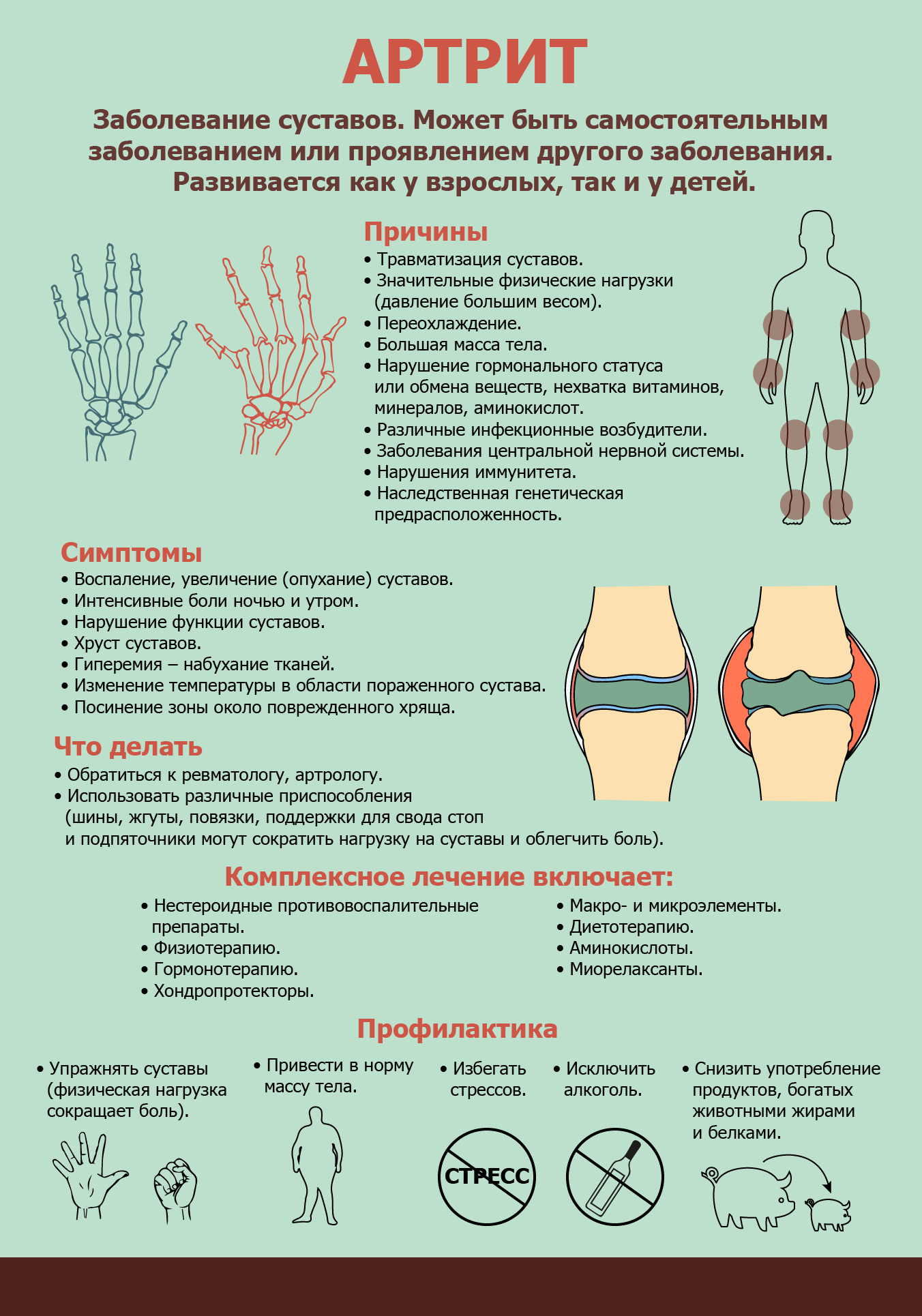 Информация об артрите