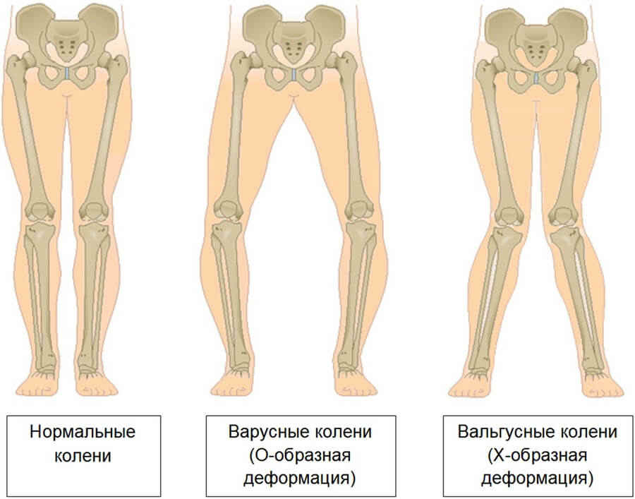 деформации колена