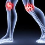 Артроз суставов: факторы риска, профилактика, симптомы и лечение