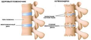 Методы лечения остеохондроза
